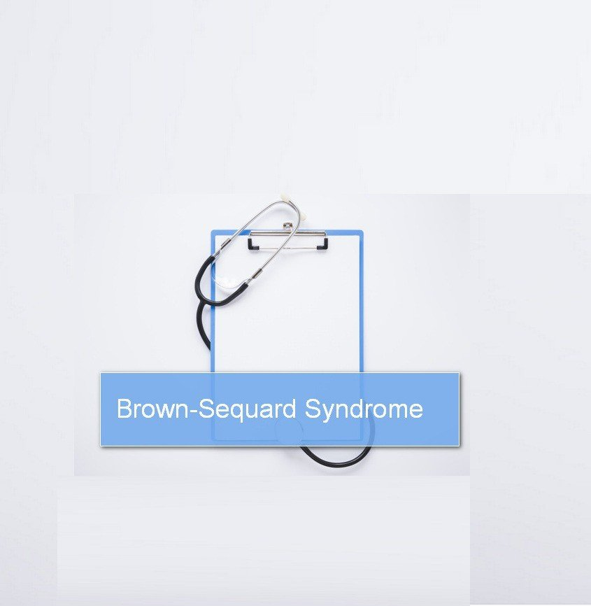 Brown-Sequard Syndrome : Causes, Pathophysiology and Symptoms