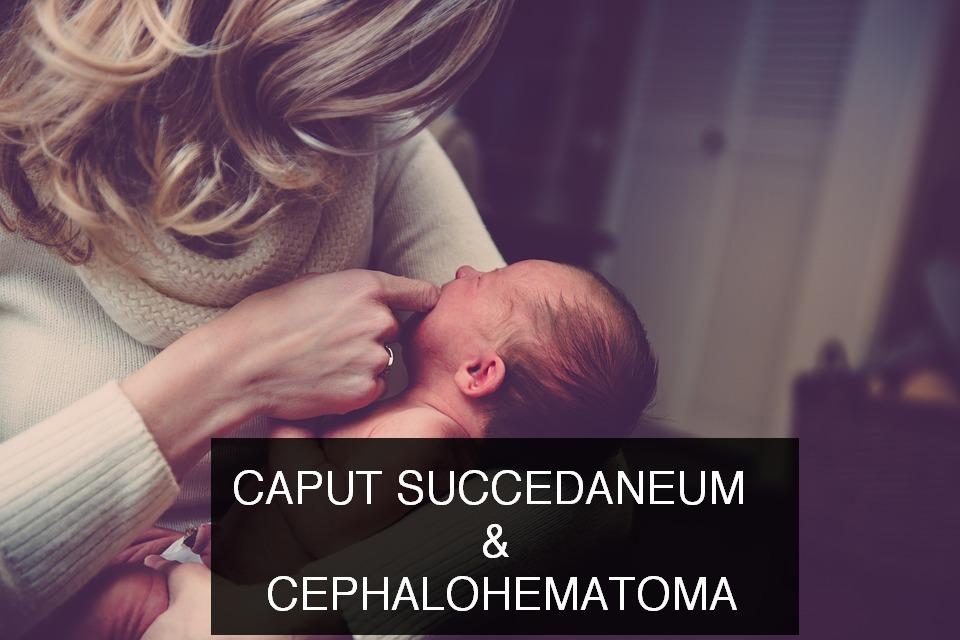Caput succedaneum and cephalohematoma