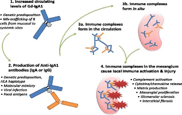 Immunoglobulin A Nephropathy (Berger's disease)