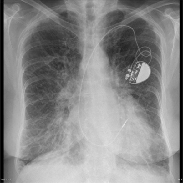 Pulmonary edema: Signs and Treatment Guidelines