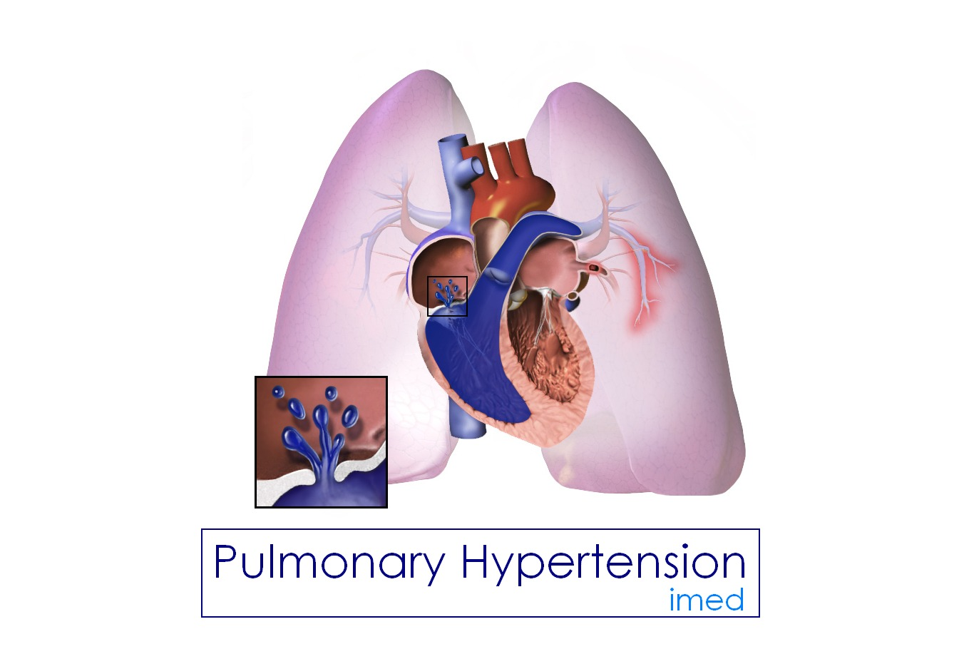 Pulmonary Hypertension: Causes, Symptoms and Treatment