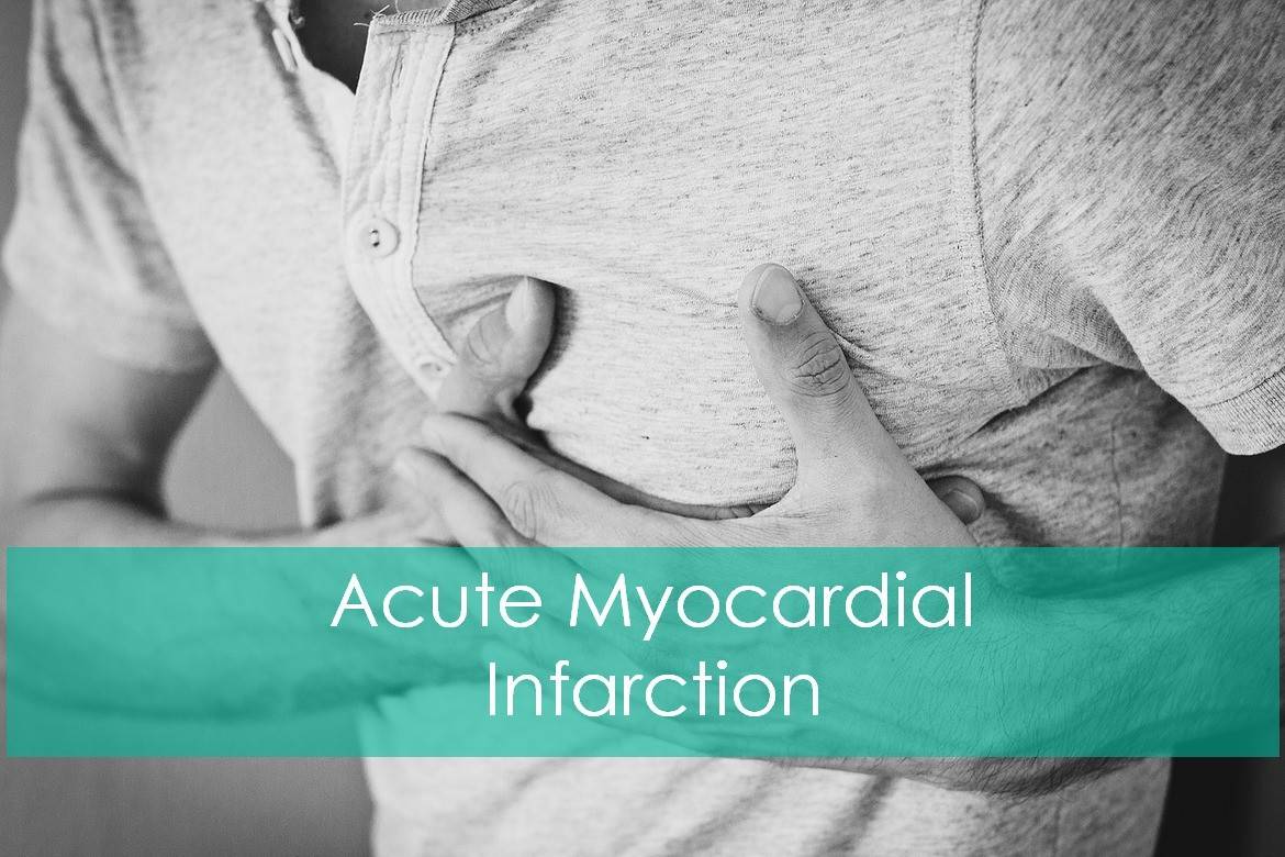 Acute Myocardial Infarction (AMI): Symptoms and Treatment Guidelines