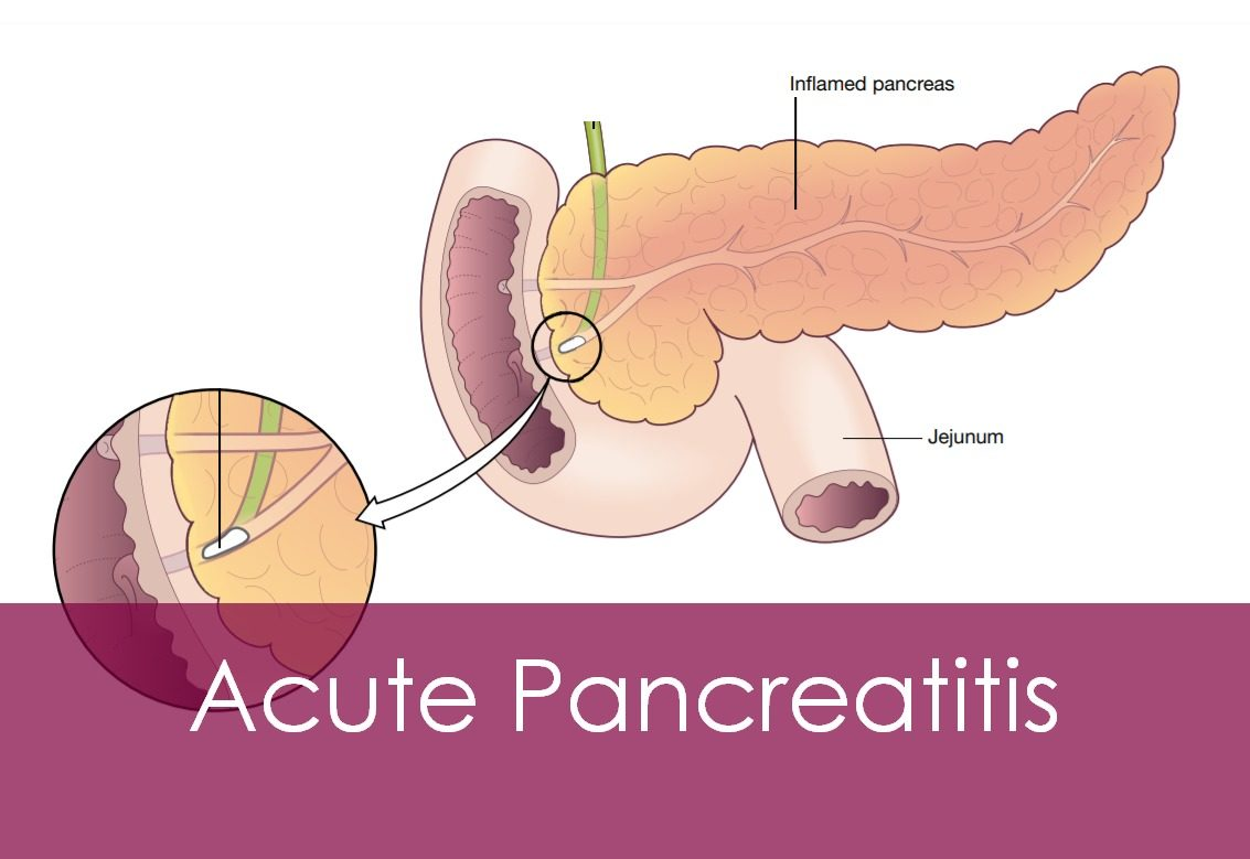 Acute Pancreatitis; Causes, Symptoms and Treatment