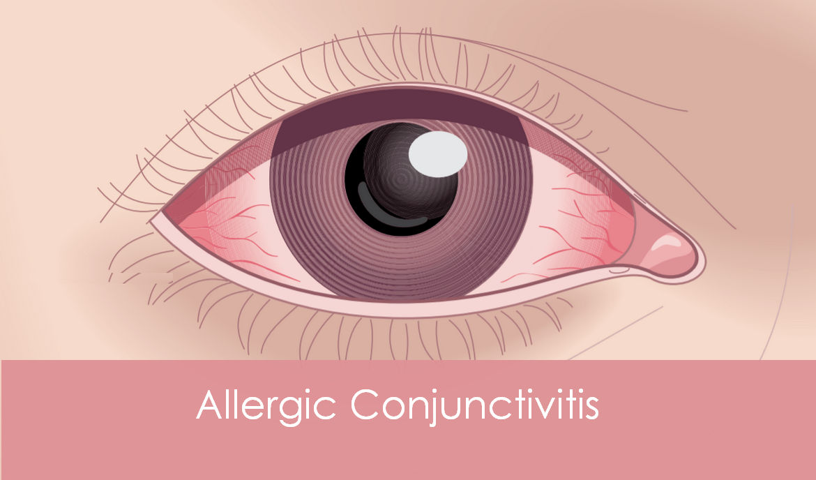 What is an allergic conjunctivitis?
