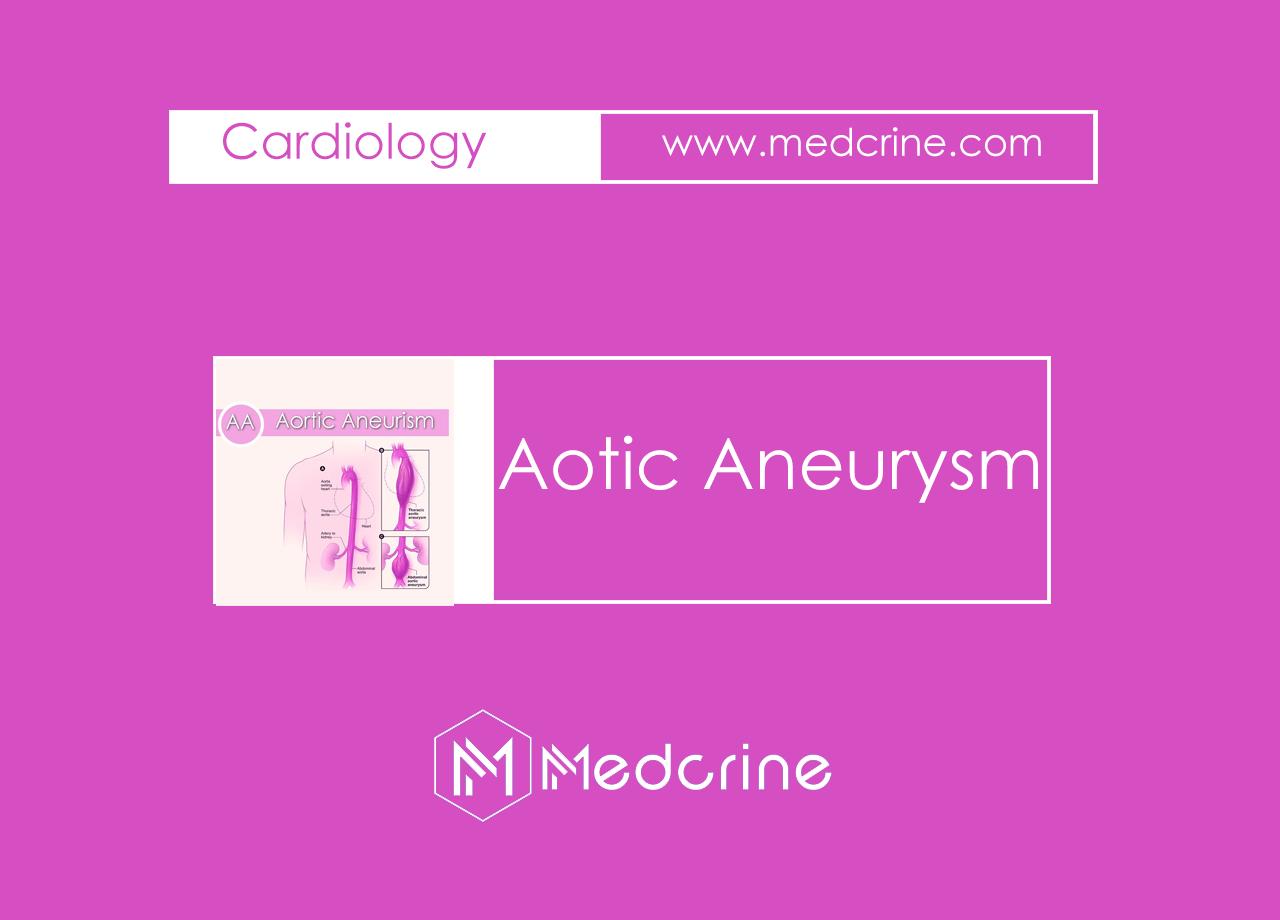 Aortic Aneurysm: Thoracic and Abdominal aortic Aneurysm