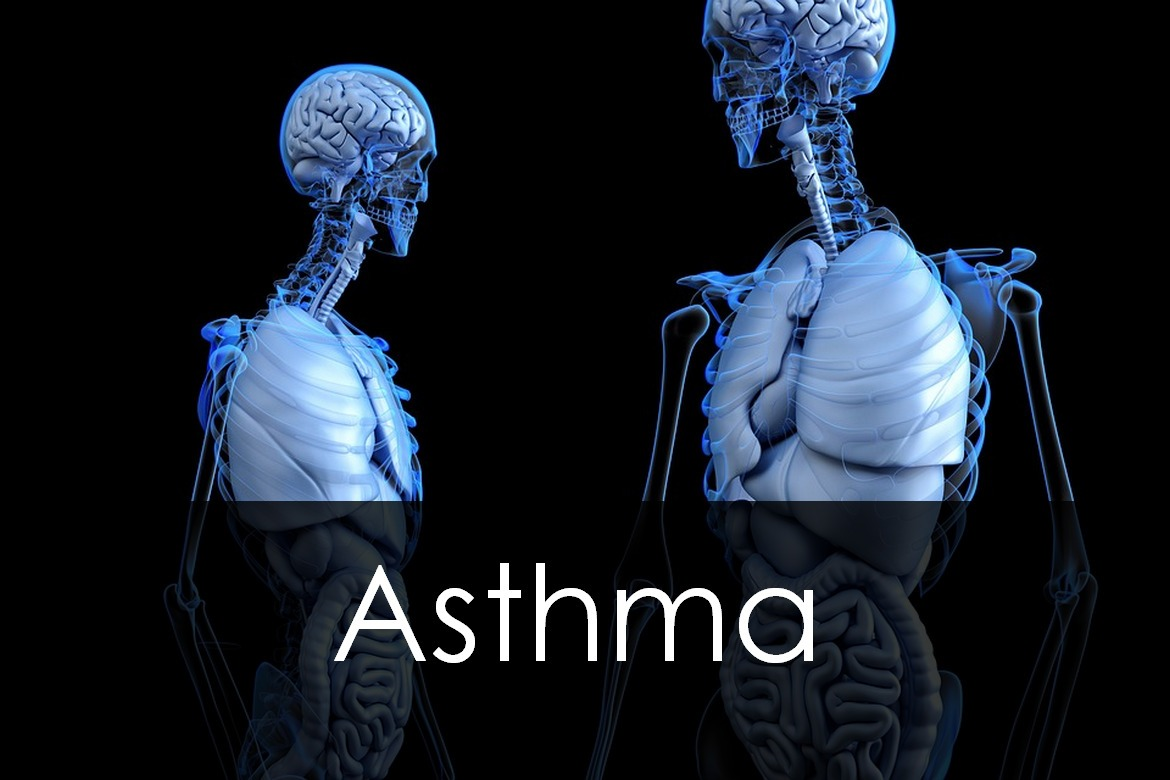 Asthma: Types, Causes, Symptoms, Diagnosis and Treatment