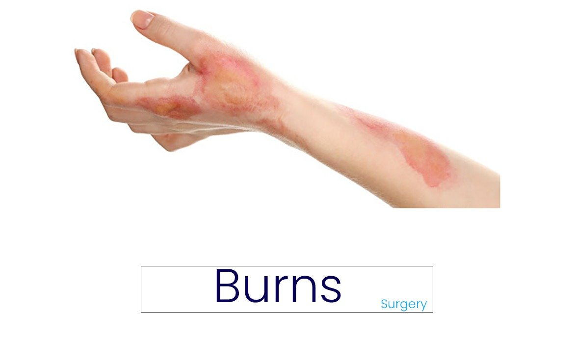 Burns : Types, Classification, Symptoms and Treatment