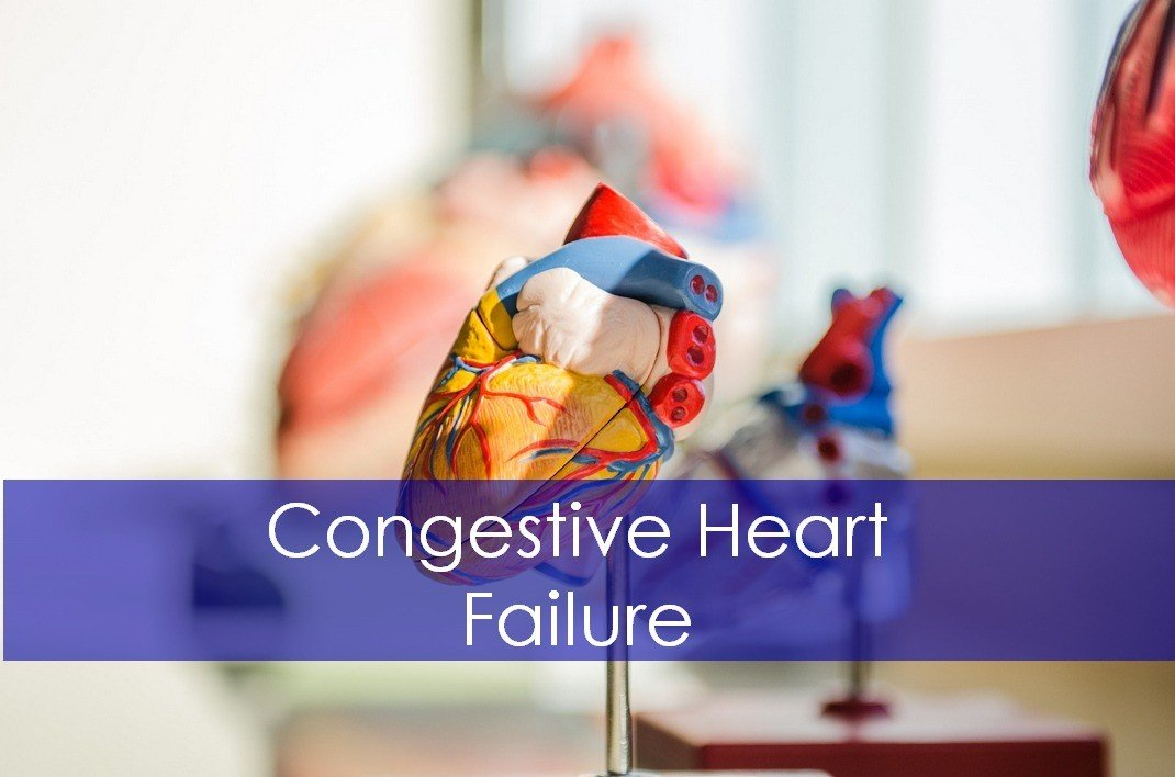 Congestive Heart Failure (CHF): Causes,Signs and Treatment Guidelines