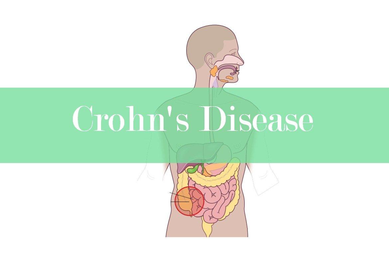 Crohn's Disease: Causes, Pathophysiology, Symptoms and Treatment