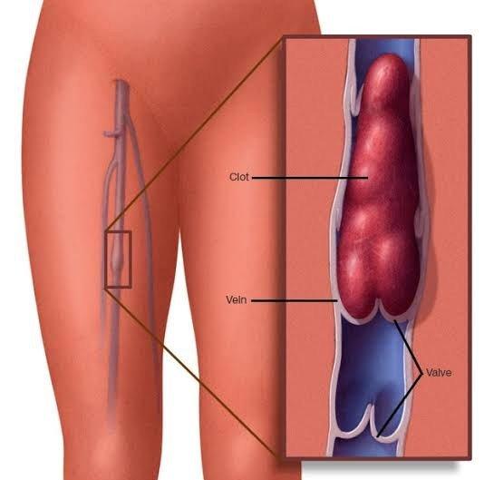 Deep Vein Thrombosis: Symptoms and Treatment