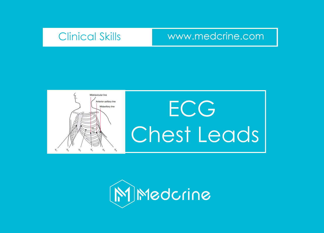 ECG Leads : Precordial /Chest Leads Placement
