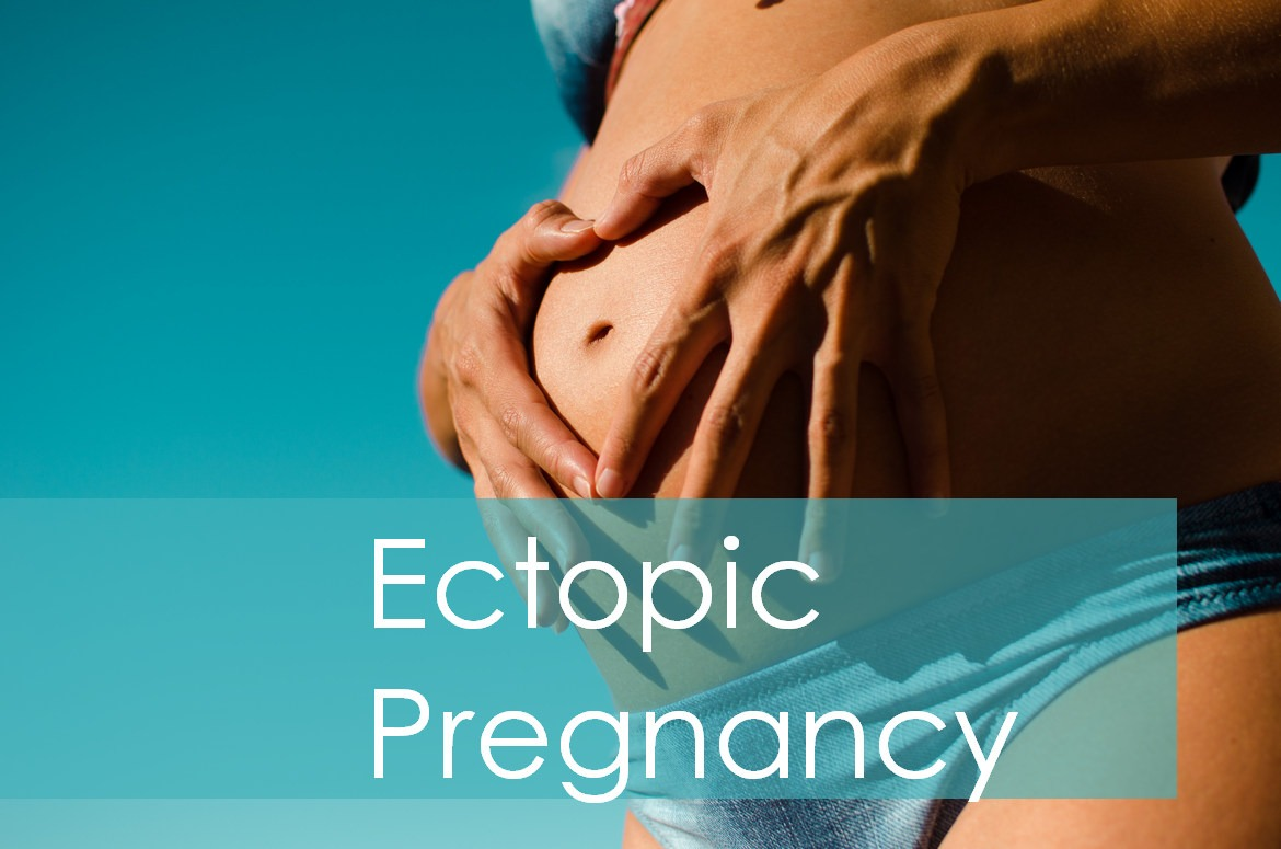 causes of ectopic pregnancy