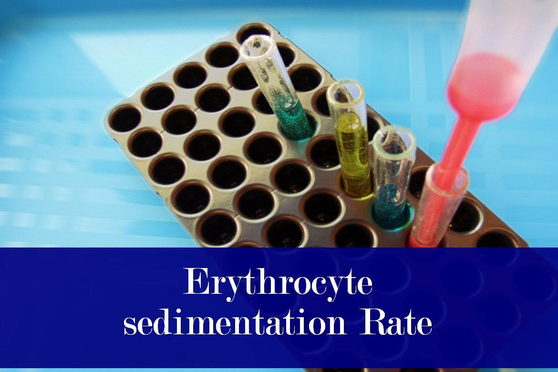 Erythrocyte Sedimentation Rate, Procedure and Interpretations