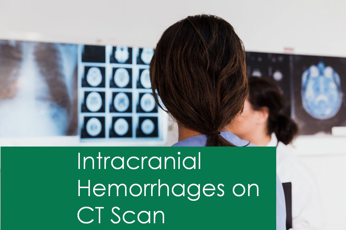 Features of Intracranial hemorrhage on Head CT Scan