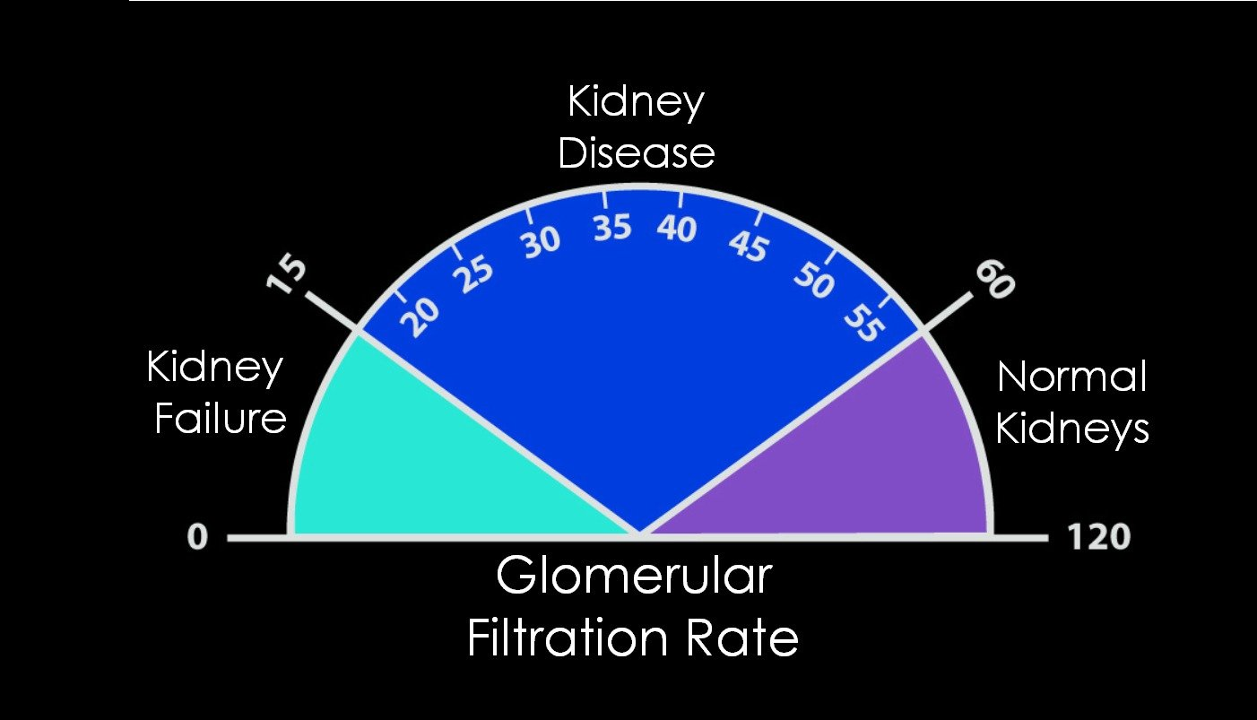 Glomerular Filtration Rate(GFR) Physiology and Measurement