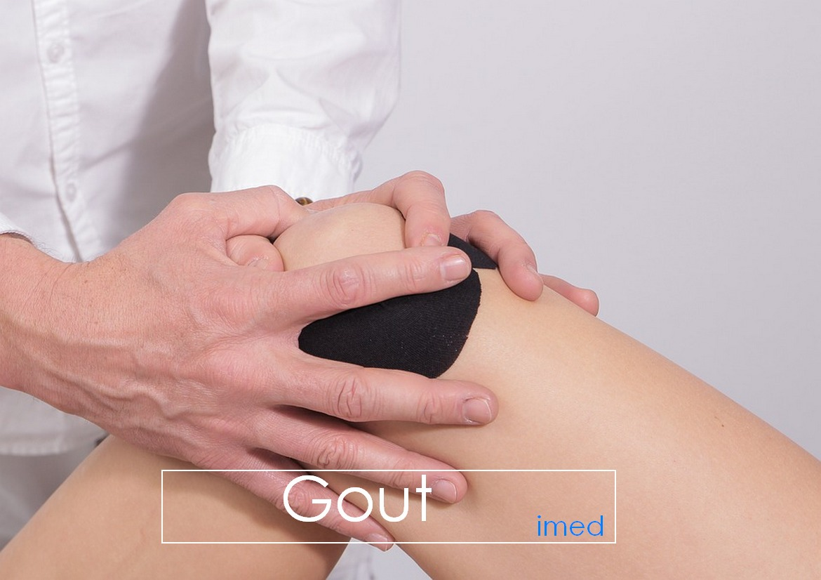 Gout: Pathophysiology, Causes, and Treatment