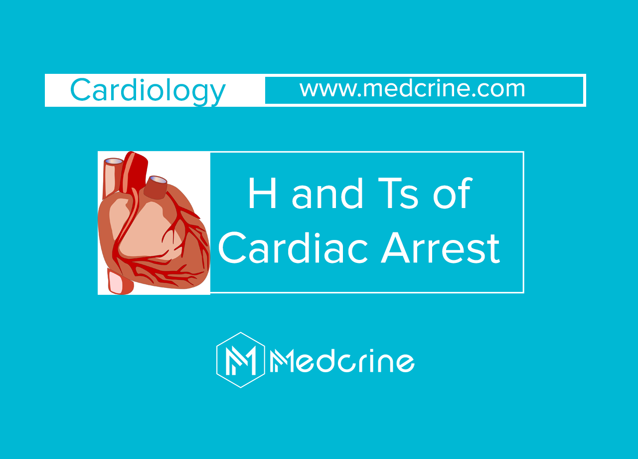 H's and T's of Cardiac Arrest
