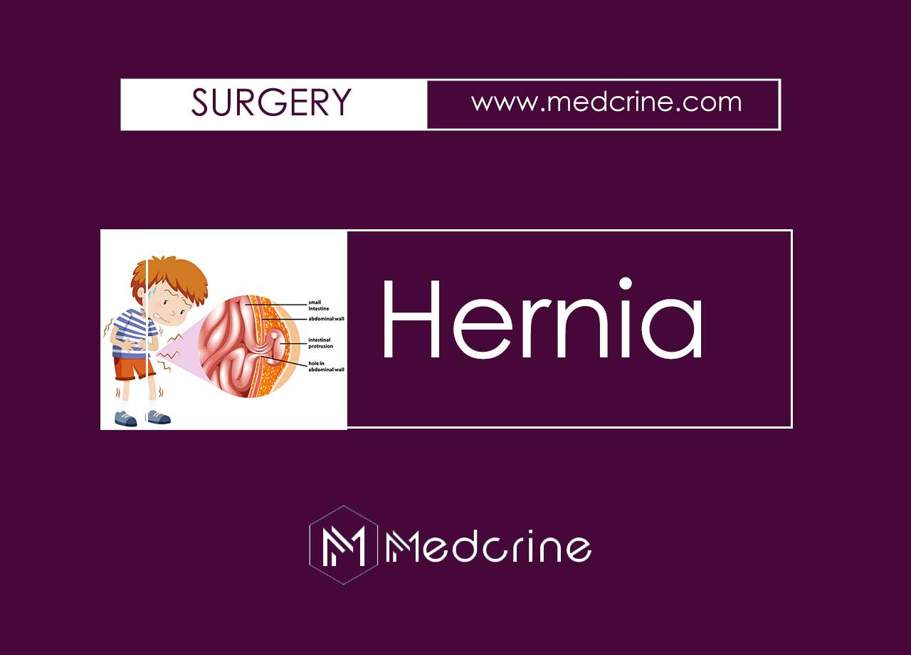 Composition, Classification and Clinical Features of Hernia