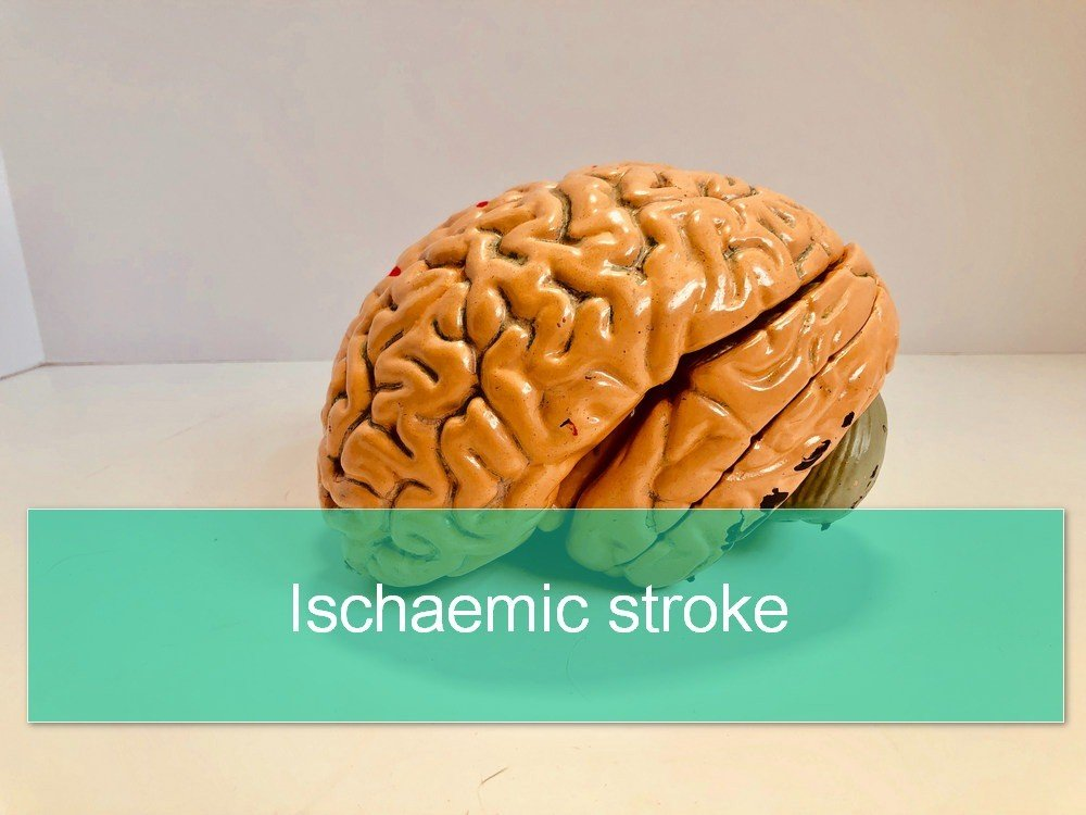 Ischaemic Stroke: Pathophysiology, Signs and Treatment