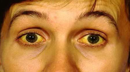 Jaundice (Hyperbilirubinemia): Causes, Symptoms and Treatment