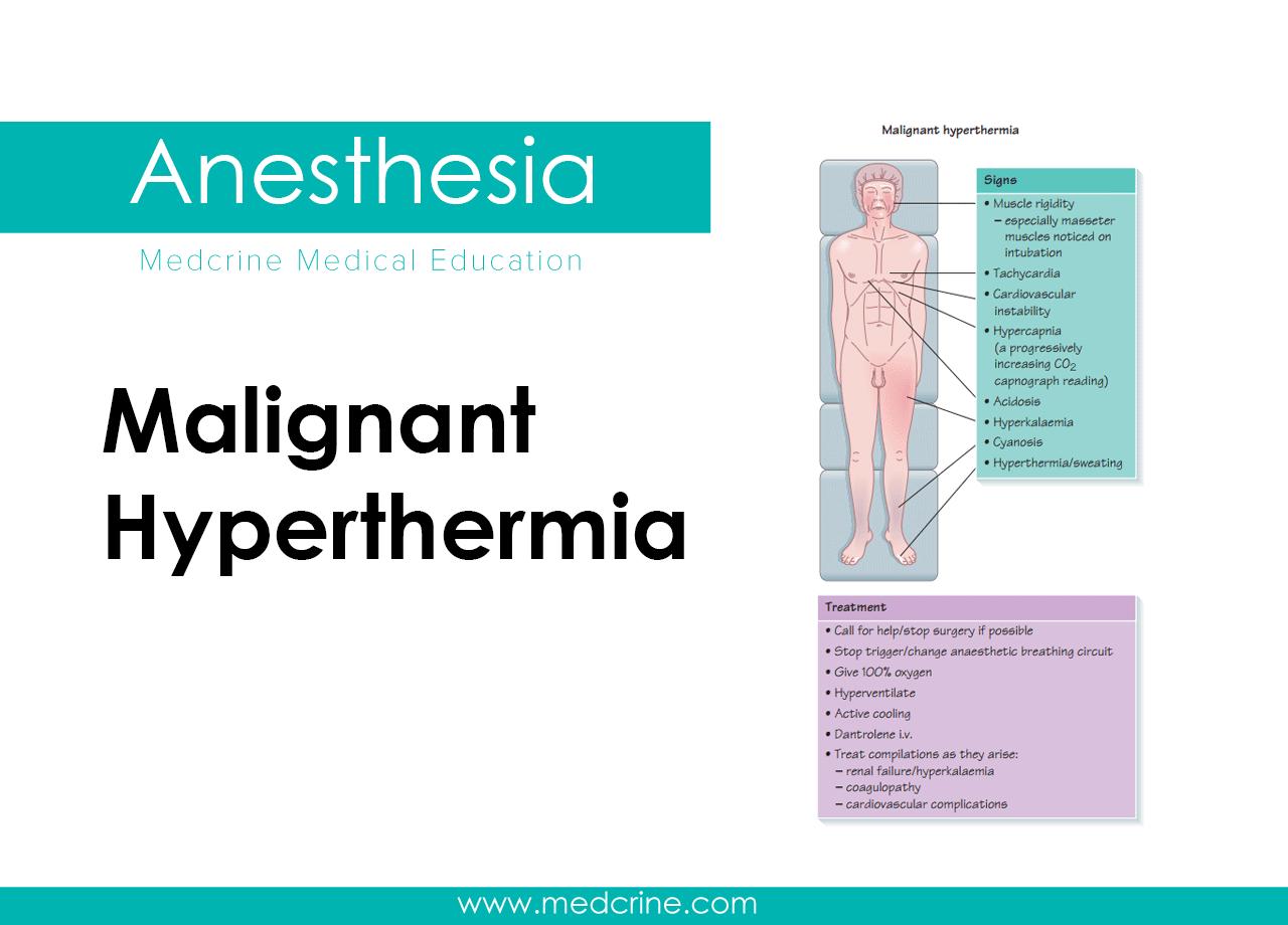 Malignant Hyperthermia (Malignant hyperpyrexia )