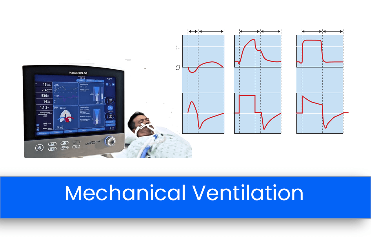 Modes of Invasive Mechanical Ventilation and their Indications