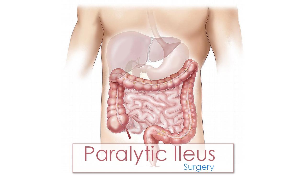 Ileus: Causes, Symptoms and Treatment