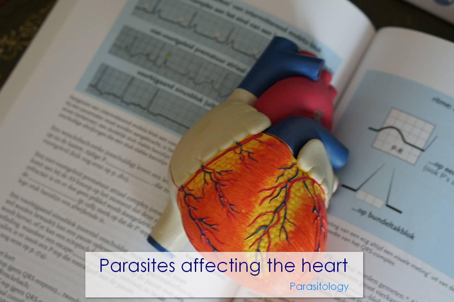 Parasites affecting the heart