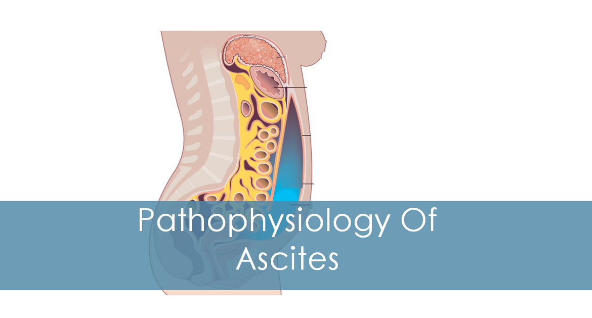 Causes and Pathophysiology of Ascites