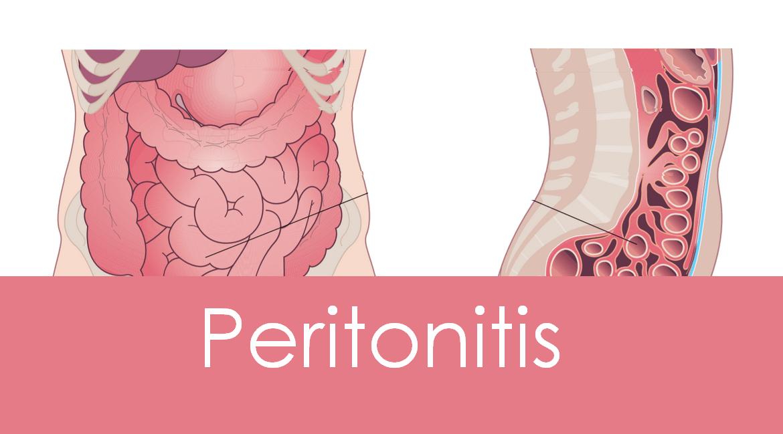 Peritonitis: Causes, Symptoms and Treatment