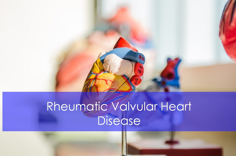 Rheumatic Valvular Heart Disease