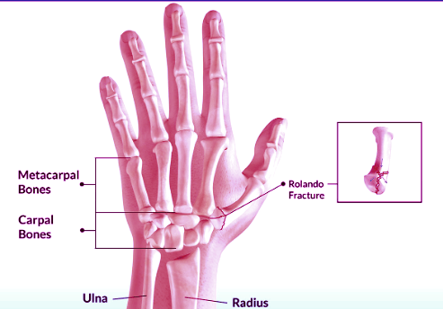 Rolando fracture Causes,Pathophysiology and Treatment