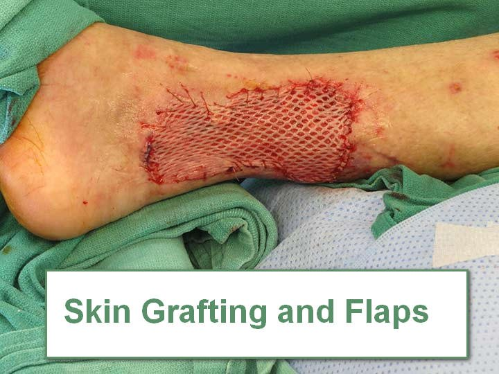 Skin Grafting and Flaps in Burn wounds