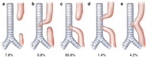 Esophageal Atresia: Tracheaoesophageal Fistula