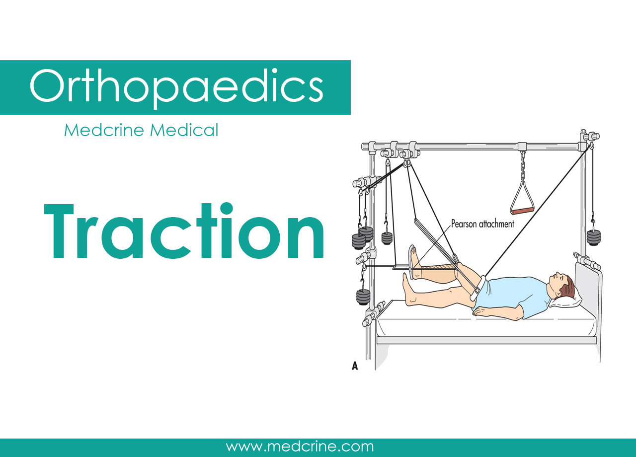 Types of Tractions in orthopedics
