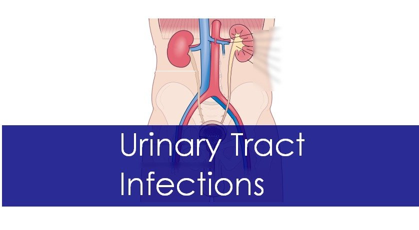 Urinary Tract Infection: Causes, Symptoms and Treatment
